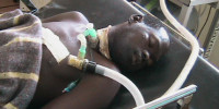 opoka in ICU Lacor hospital